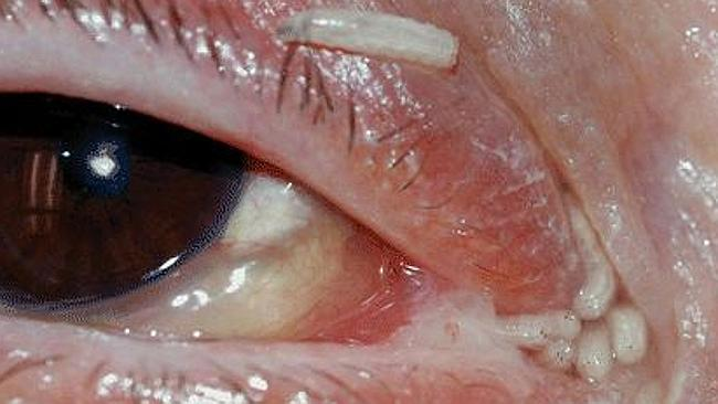 Horror ... 120 maggots were removed from a woman's face after a fly laid eggs on her in h