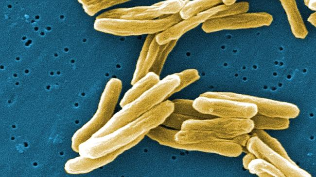 CONCERN: The latest case marks the third time TB has been confirmed in a Far North school