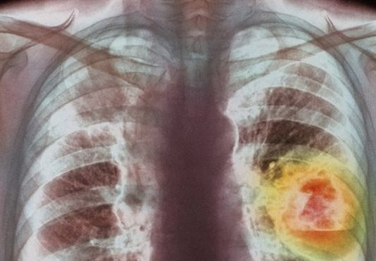 83308741_m1340336-coloured_x-ray_showing_lung_cancer-spl.jpg