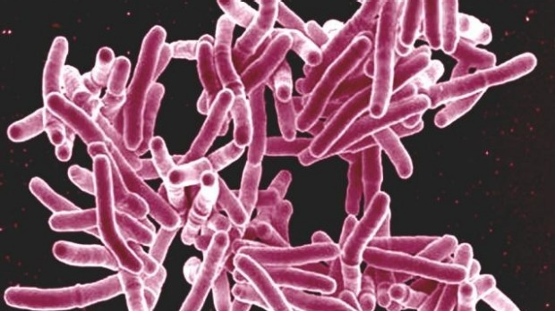 Scanning electron micrograph of Mycobacterium tuberculosis bacteria, which cause TB.