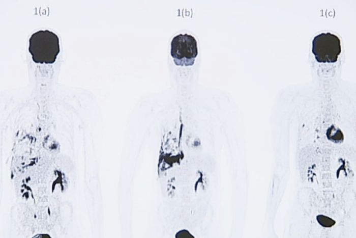 PET scans of Bradley Selmon's lungs
