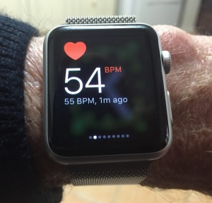 The lifesaving Apple Watch.