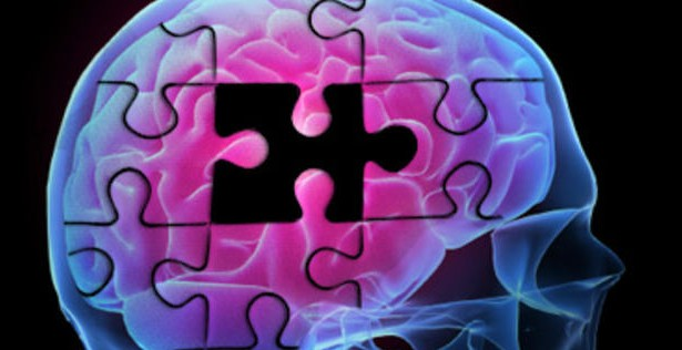 alzheimers brain 12