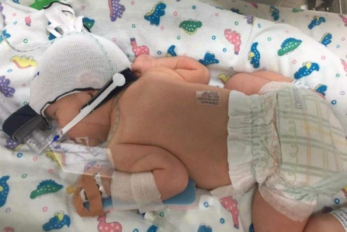 Photo: The baby girl was born on Monday, however the mother died during the caesarean. (Supplied: Go Fund Me)