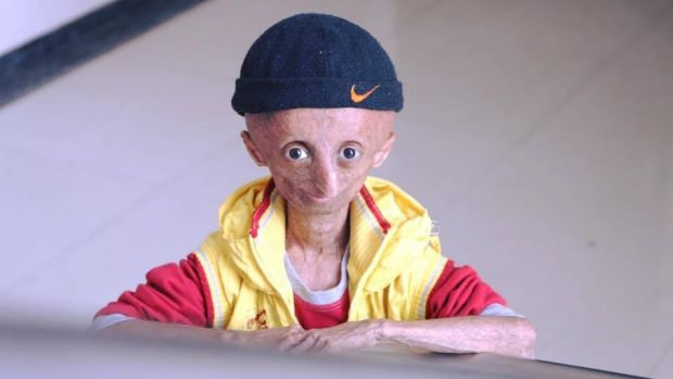 Nihal Bitla, who has died aged 15, suffered from progeria, which causes accelerated ageing. Photo: Facebook Team Nihal